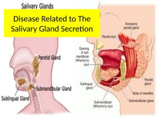 Disease Related to The Salivary Gland (tjin).pptx